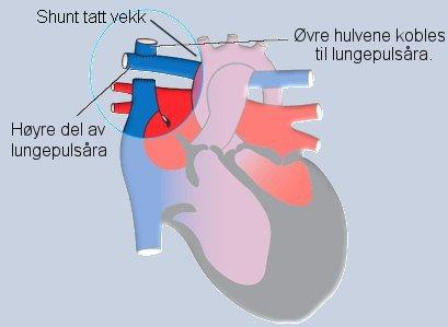 koagulasjon og oksygen